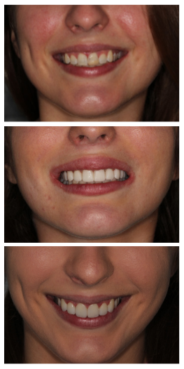 Porcelain Veneers Before After Photos