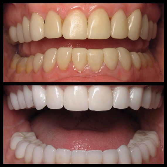 Smile-Makeover---Veneers