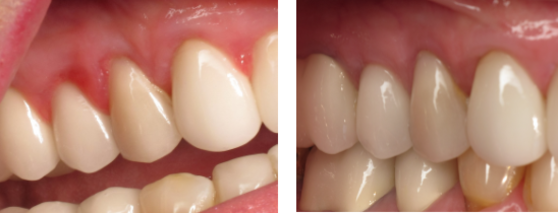 Treatment for Gum Disease Before and After Photos