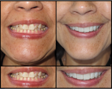 Porcelain Veneers for a Beautiful Smile